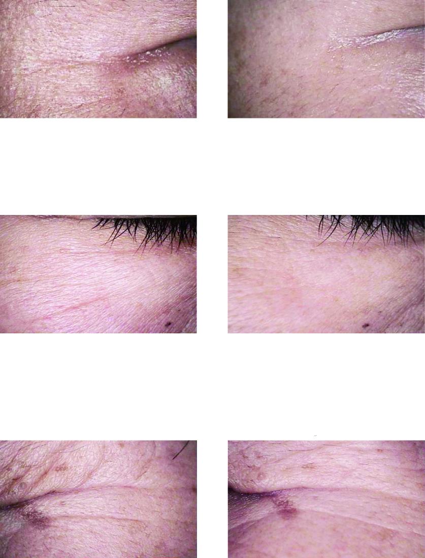 Eye Filler mask_prima-dopo-01