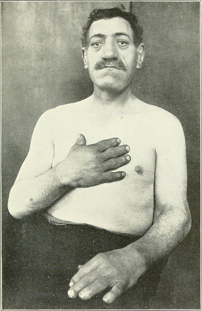 Male_acromegaly_patient_(1904)